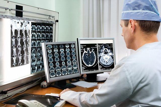 Лакунарный ишемический инфаркт мозга