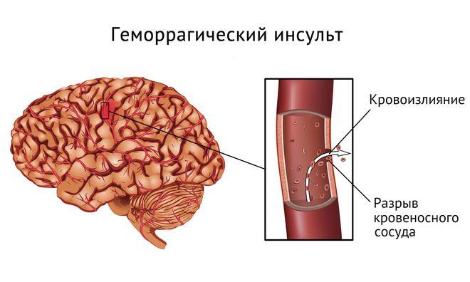 изображение инсульта