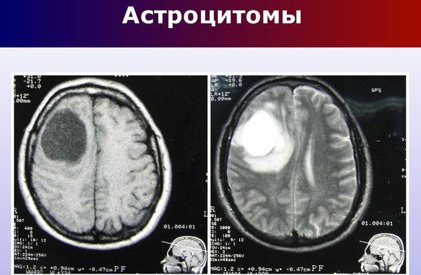 рентген снимок мозга