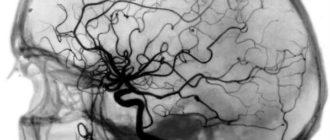 ангиография сосудов мозга