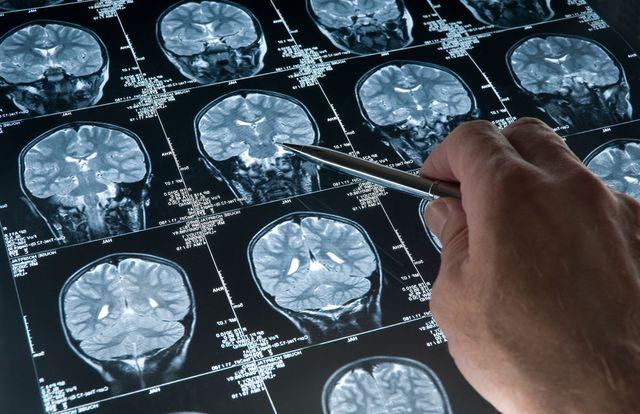 рентген мозга