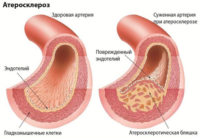 Атеросклероз сосудов головного мозга симптомы и лечение причины чем опасен диагностика продолжительность жизни