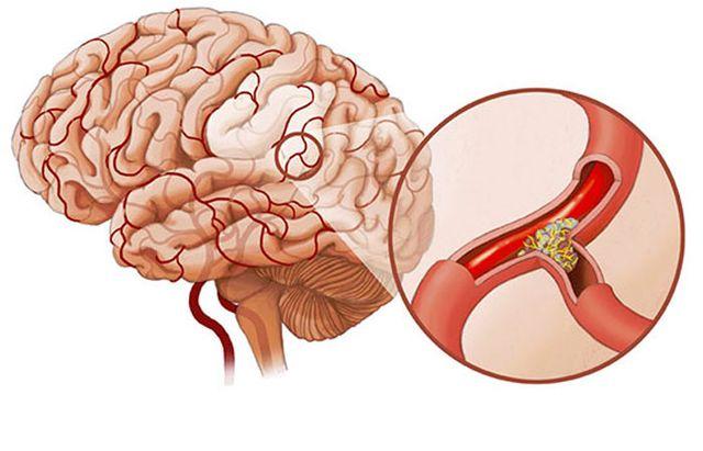 тромбы в сосудах мозга
