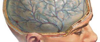 рисунок отека мозга
