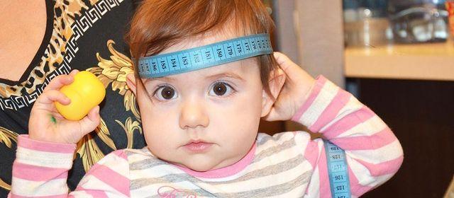 Внутричерепное давление у детей 3 лет симптомы