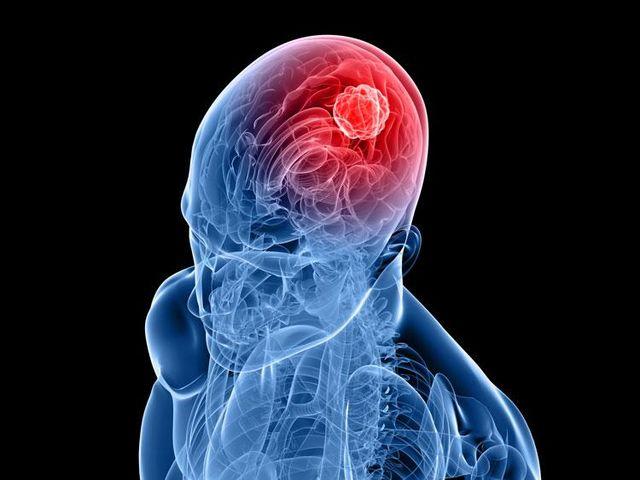 Головная боль в области мозжечка