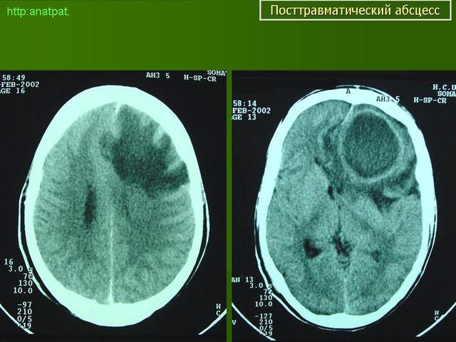 рентген мозга с абсцессом