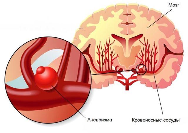 Схема заболевания сосудов мозга