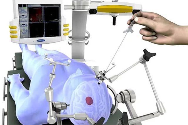 Схема биопсии с помощью рамы