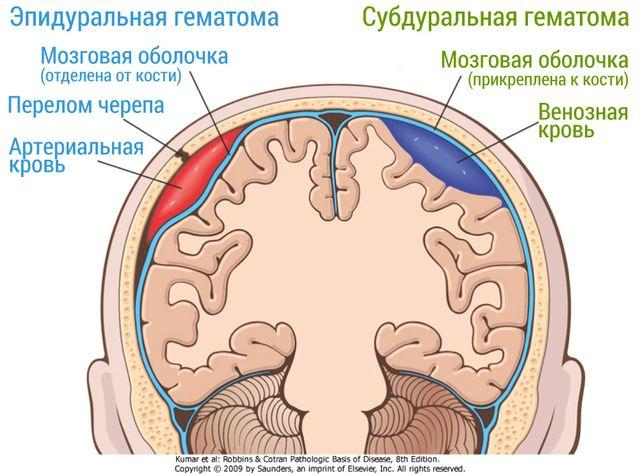 гематома мозга после травмы головы