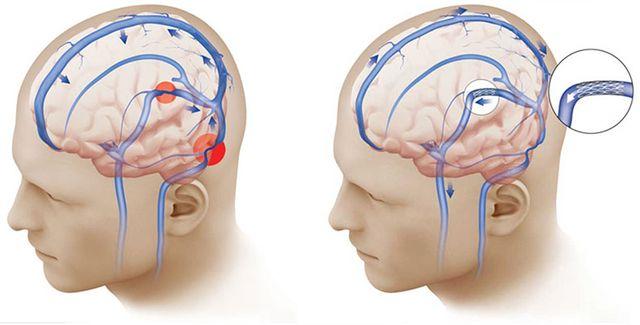 схема мозга