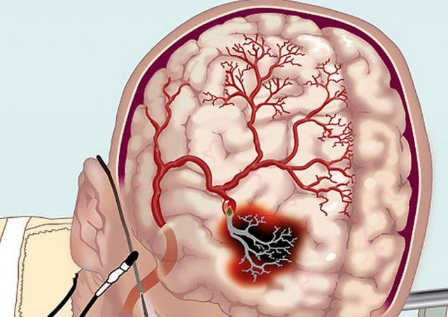Схема развития ишемии мозга