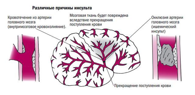 Поражение мозга кровоизлиянием