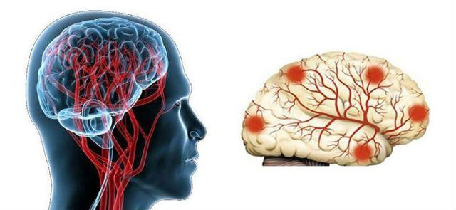 Схема поражения мозга