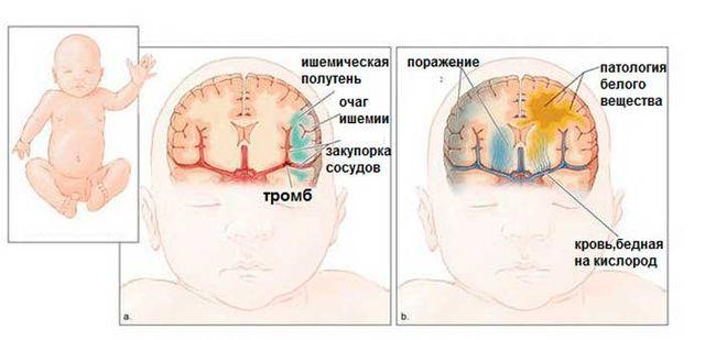Развитие болезни у новорожденных