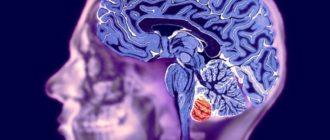 Мозг рентген