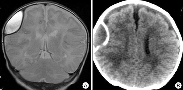 Гигрома мозга