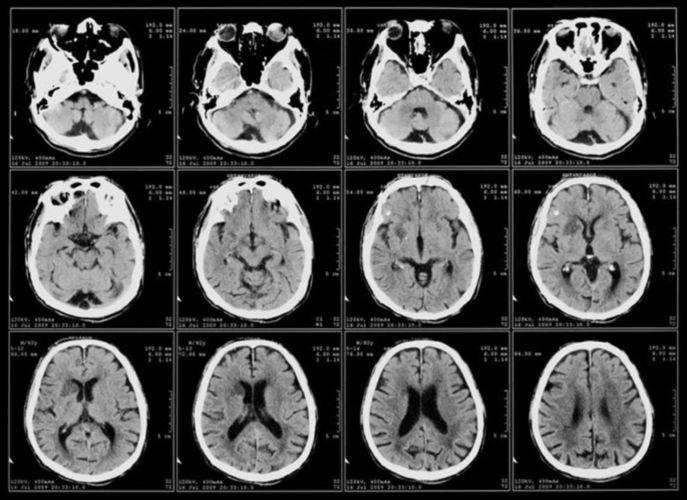Рентген мозга 2