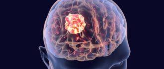 Опухоль в мозгу