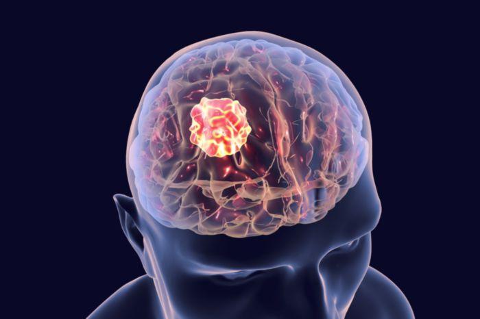 Менингома мозга: последствия, лечение, реабилитация