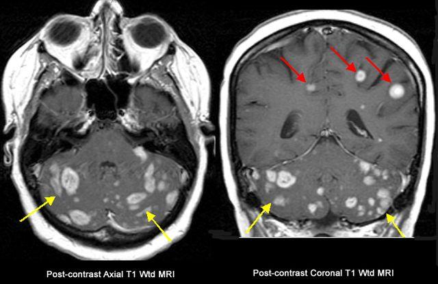 Снимок головного мозга с очагами поражения