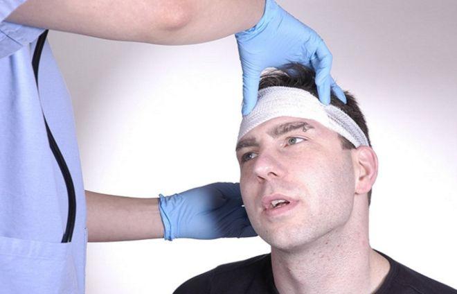 Шунтирование сосудов головного мозга после инсульта