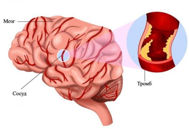 Тромб в голове