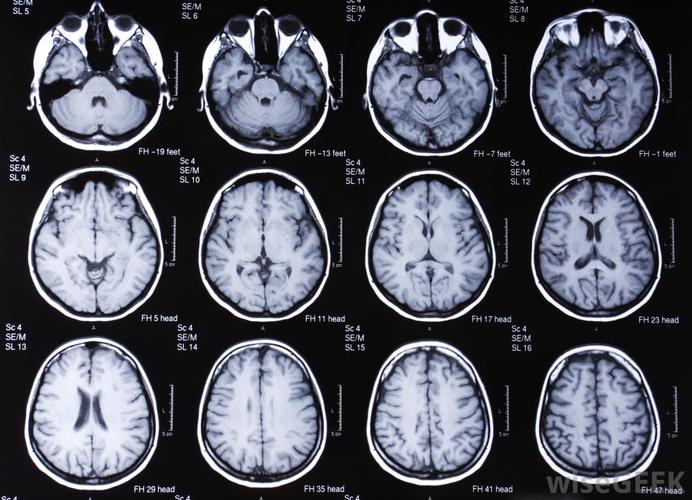 Головная боль при опухоли мозга: симптомы и признаки