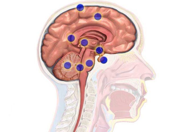 Причины опухоли головного мозга: виды и симптомы