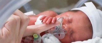 Больной младенец