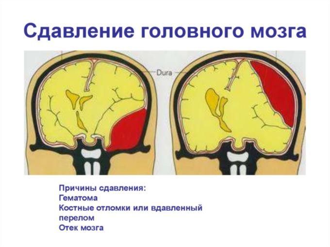 Сдавливание мозга на картинке